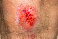 maceracja skóry
