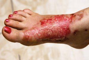 stopa-oparzenie